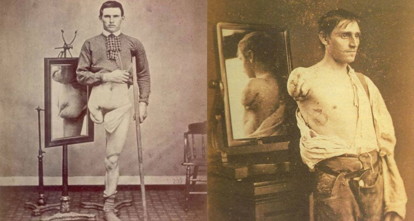 Phantom Limb Syndrome History