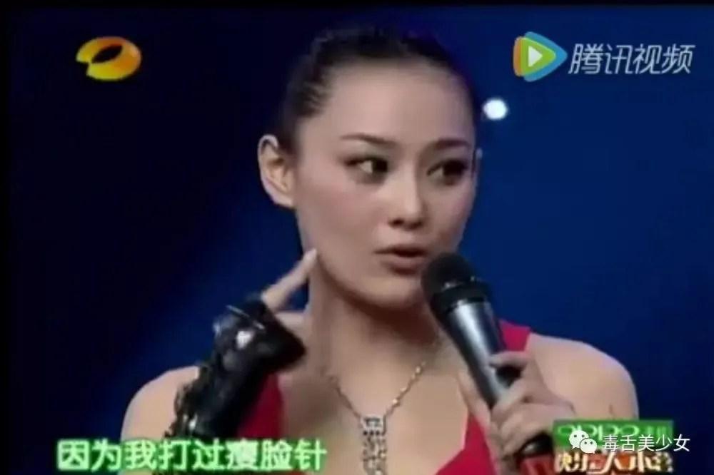 毒舌美少女:瘦脸针有没有用,看张馨予就知道了