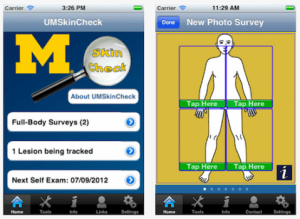 Self-Examine For Skin Cancer With This Mobile App