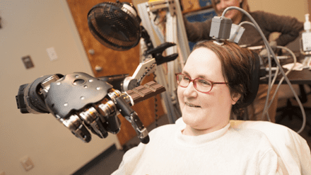 Woman with Quadriplegia Feeds Herself Chocolate Using Mind-Controlled Robot Arm