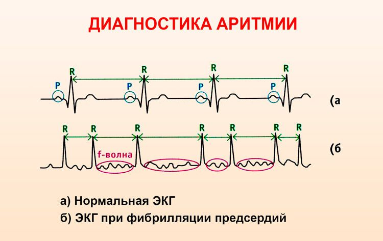 EKG Signs Arrhythmia.