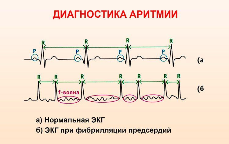 ЭКГ белгілері аритмия