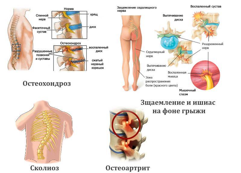 Acupunctura pentru regenerarea nervilor