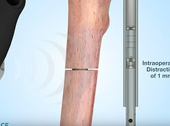 Новинка детской ортопедии — стержень Precice Nail для удлинения нижних конечностей без спиц