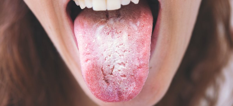 Tongue Auris Candida