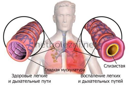 Inflammation i luftvägarna
