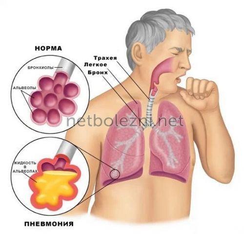 Svamp typ av lunginflammation