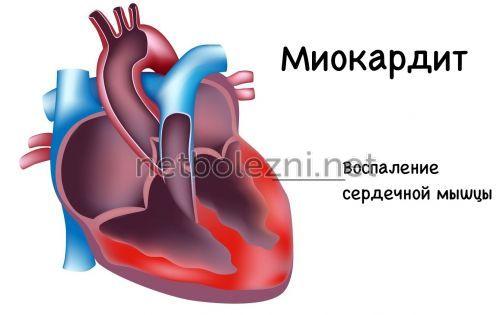 Τι είναι η μυοκαρδίτιδα