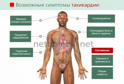 Siêu âm cơ tim để chẩn đoán bệnh