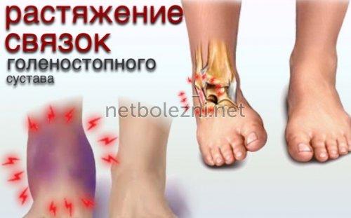Растяжение связок при травме