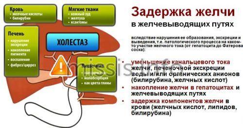 Informazioni generali su colestasy