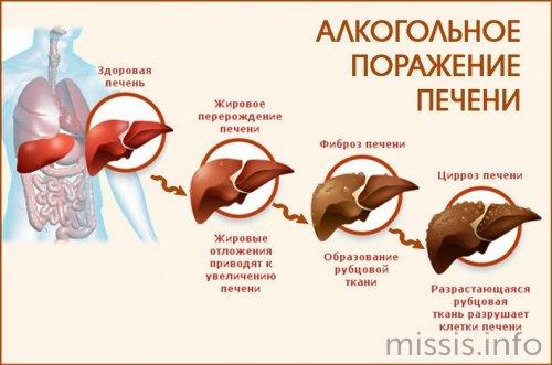 Lesione alcolica del fegato