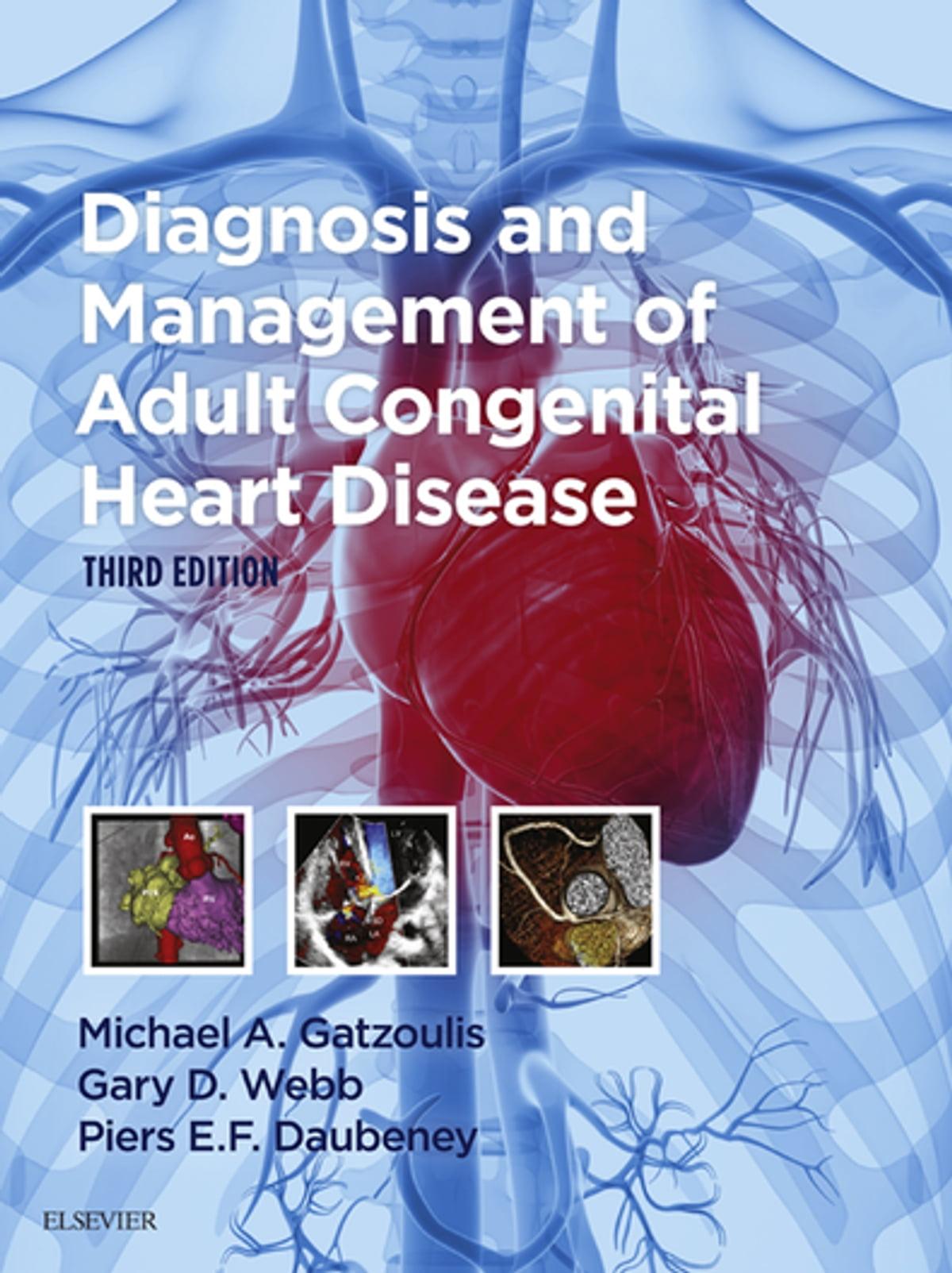 congenital heart disease in adults - HD1200×1604