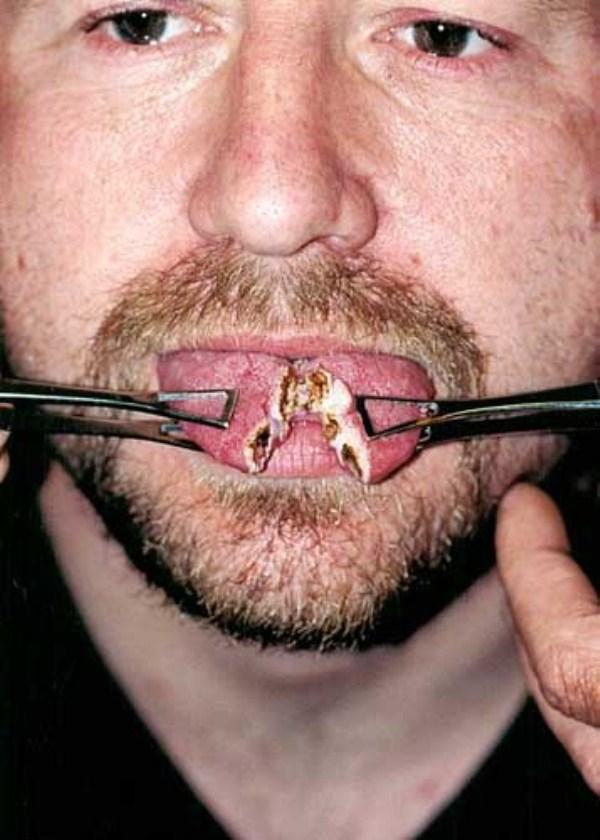 Tongue Splitting 38 Photos Klyker Com