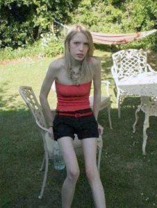 Anorexia Girls 20 Klyker Com