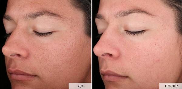 Photos avant et après le cours de darsonvalisation n ° 1