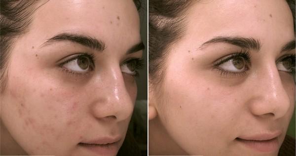 Photos avant et après le cours de darsonvalisation n ° 2