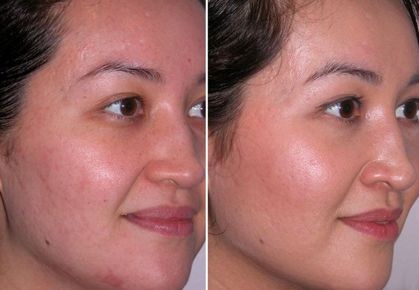 Photos before and after darsonvalization course No. 3