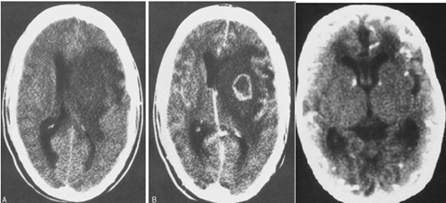 Abnormal Ultrasound Scans