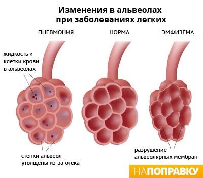 как меняются альвеолы человека при пневмонии