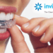 The Most Frequently Asked Questions on Invisalign Teeth Straightening