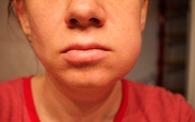 개인 두개골 부비동의 염증 - 치과 미소 라인