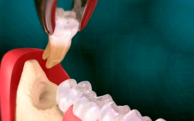 View of a remote tooth well 3 days after removal