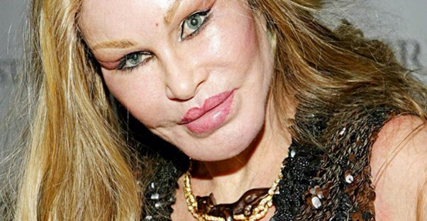 9 People Who Prove That Plastic Surgery Has Gone Too Far
