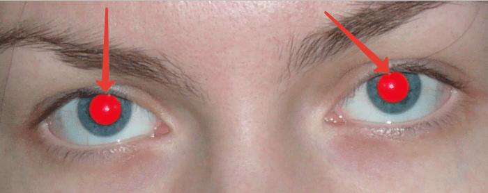 Αφαιρέστε τη μέθοδο των κόκκινων ματιών 1 (2)