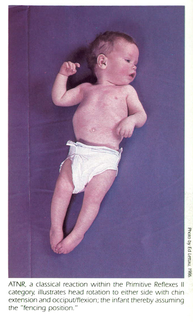 images for decorticate posturing in infants