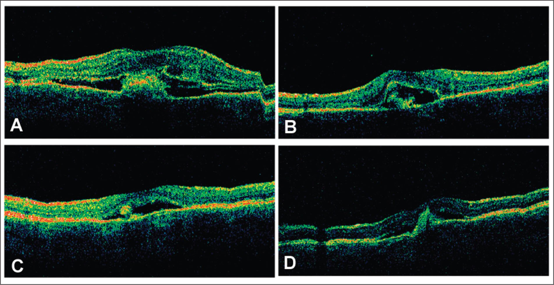 Treatment Of Choroidal Neovascularization Associated With