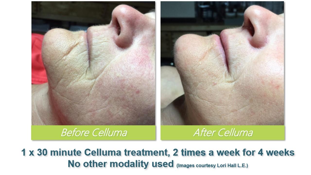 Celluma Led Light Therapy