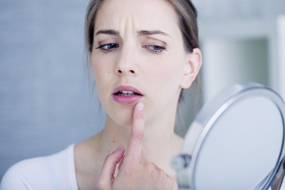 herpesul genital vă fac să pierdeți în greutate
