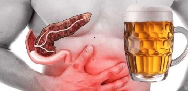 Поджелудочная железа и алкоголь