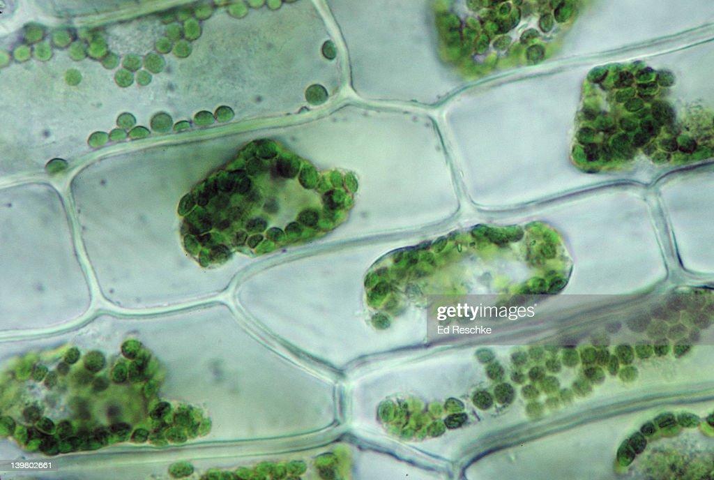 Elodea Cells Hypertonic Solution