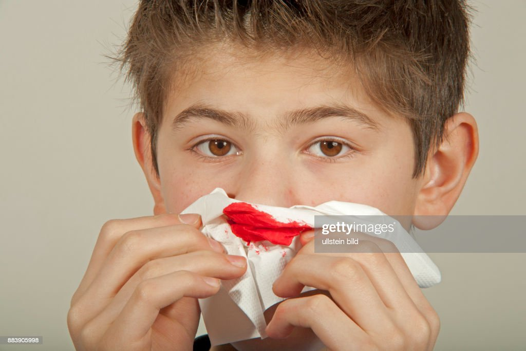 Nose Bleeding Stock Photos and Pictures | Getty Images