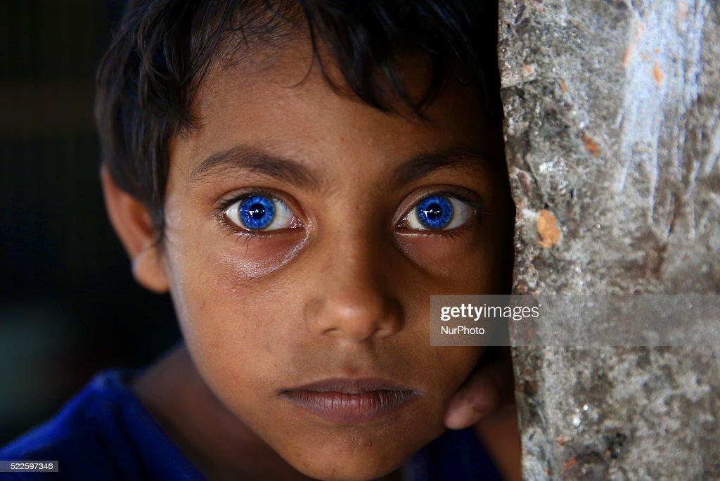 Rarest Eyes In The World