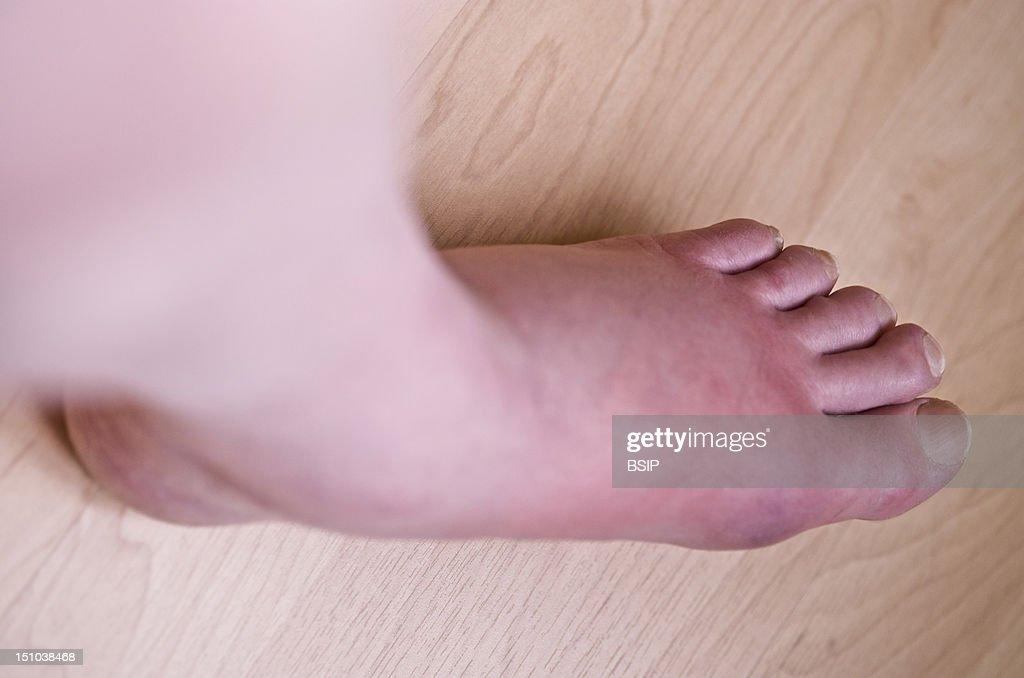 Swollen Ray X Knee Fluid