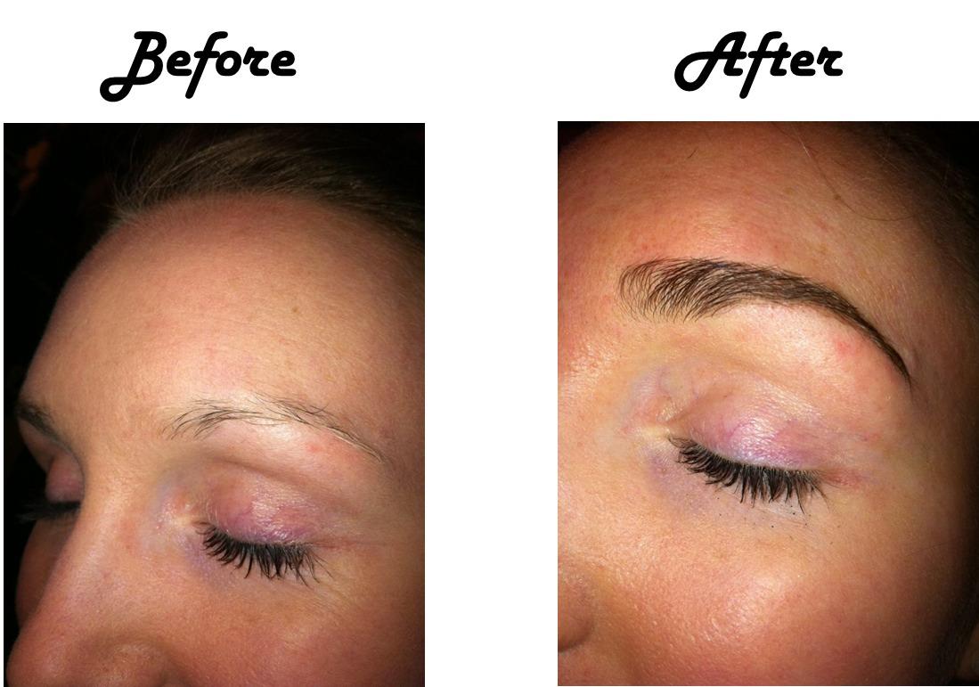 Rogaine Eyebrow Growth