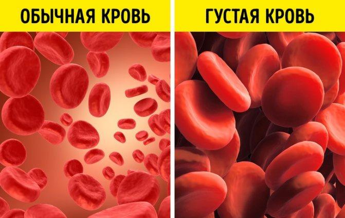 О чем говорят повышены эритроциты в крови у ребенка