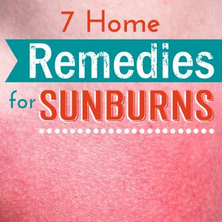 7 Home Remedies For Sunburns