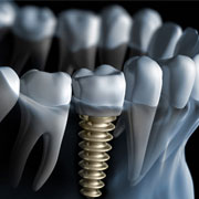 fresno dental implants