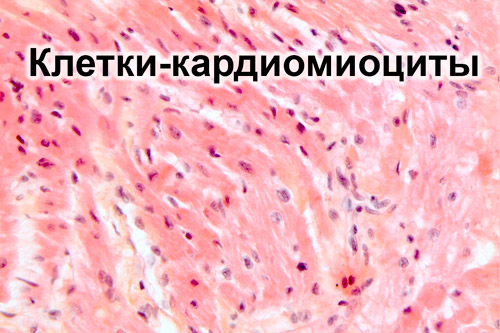 Клетки миокарда