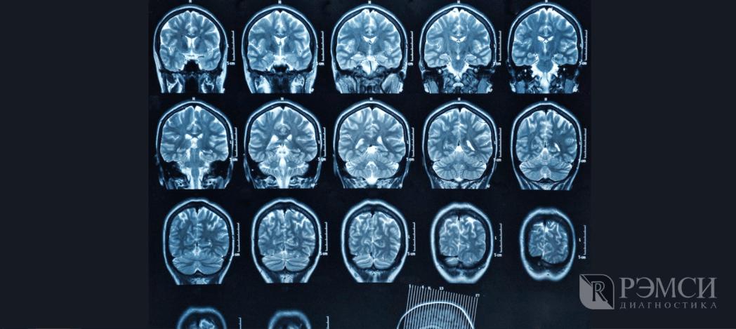 Как проходит исследование головного мозга: пример снимка МРТ