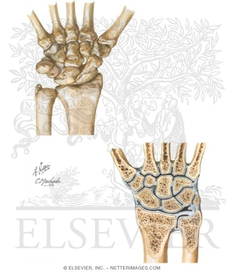 Unlabeled Hand Bones Joints And Wrist