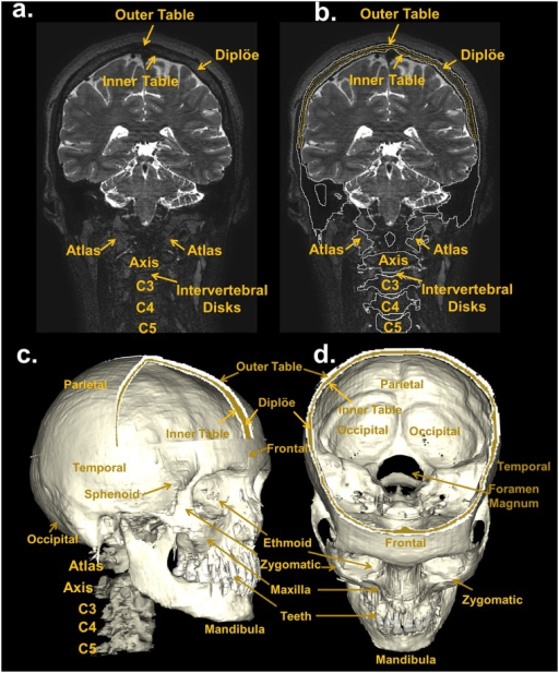Inner Outer Table Skull And Bone