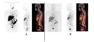 Estradiol PET/CT Imaging in Breast Cancer Patients