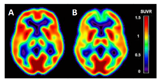 Figure 9 shows the cerebral hypometabolism in early-stage Alzheimer's disease.