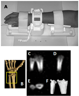 Figure 15 shows the phosphorus-31 solid-state MRI visualisation of bone mineral in human wrists