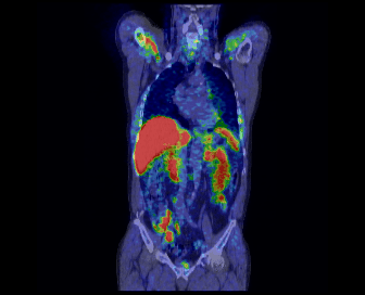 Figure 2 shows the carbon-11 choline PET/CT scan of the coronal view in the human body and prostate cancer